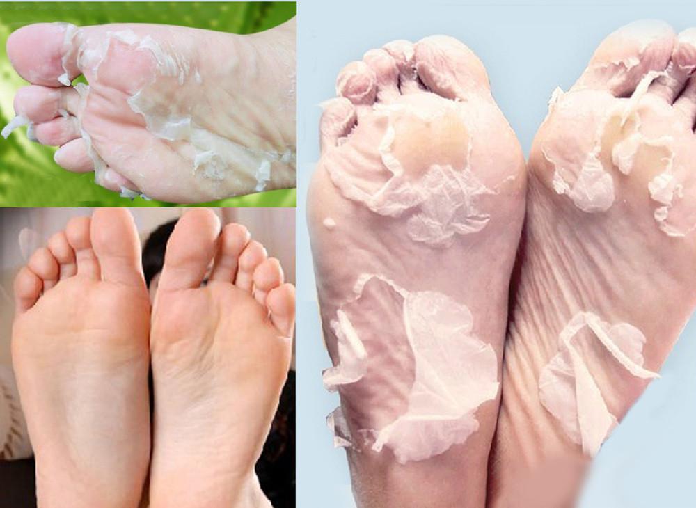 מסיכת פילינג לחידוש העור ברגליים