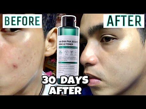 טונר הפלא - 30 יום לשלמות העור
