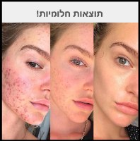 שרביט מזותרפי לטיפול וטיפוח עור הפנים והקרקפת
