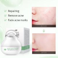 Anti Acne - משחה לטיפול באקנה