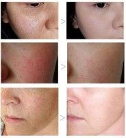 סרום אנטי אייג'ינג למיצוק וטיהור העור