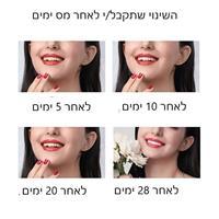 רצועות להלבנת שיניים-לילה