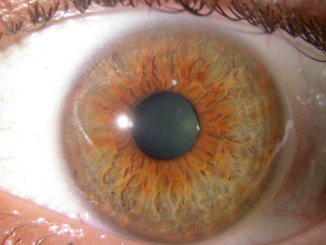 קורס אבחון אירידולוגי - בקשתית העין