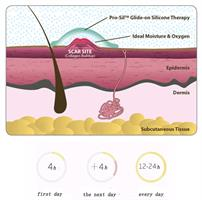 רצועת ג'ל אורגנית להעלמת צלקות -  Kinsmirat gel