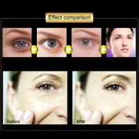 רולינג EYE -אפקט מיידי לעיניים
