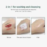 ניקוי פנים וטיפול באקנה