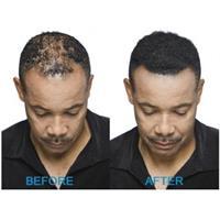 ™Toppik האבקה המיוחדת להעלמת שיער דליל
