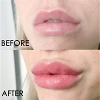 LIP PLUMP SOS סרום לניפוח שפתיים - תוצאה מיידית