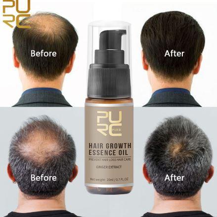 PURC - סרום להאצת צמיחת השיער