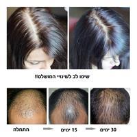 ספריי לצמיחת שיער