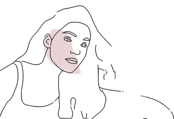 פיאות- סדרת 12 טיפולי הסרת שיער בלייזר IPL