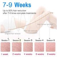 מכשיר IPL ביתי להסרת שיער לצמיתות - ללא כאב