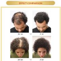 ספריי טיפולי לצמיחת שיער והפסקת נשירה