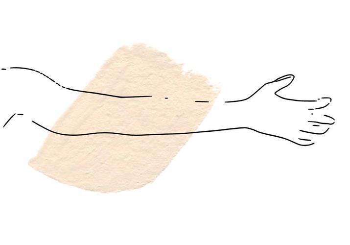 ידיים שלמות- סדרת 12 טיפולי הסרת שיער בלייזר IPL