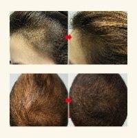 מברשת לייזר לצמיחת שיער ועצירת נשירה
